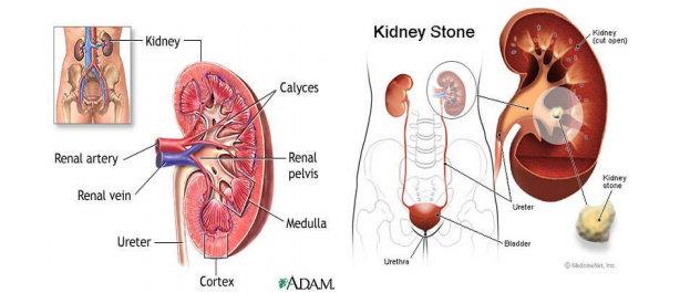 Anatomi Ginjal Normal dan Ginjal dengan BSK