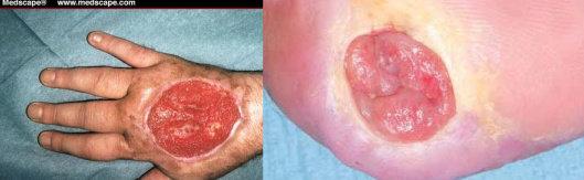 Kiri : jaringan granulasi sehat, Kanan : jaringan hipergranulasi