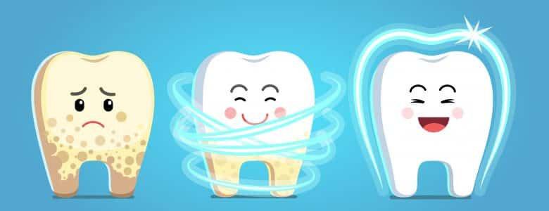 Plak gigi