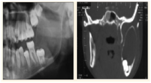 (a) Ameloblastoma pada mandibula sinistra pada foto polos, sebagai lesi yang luas dan ekspansil. (b) CT scan potongan coronal memperlihatkan lesi luas yang ekspansil, penipisan korteks dan destruksi minimal