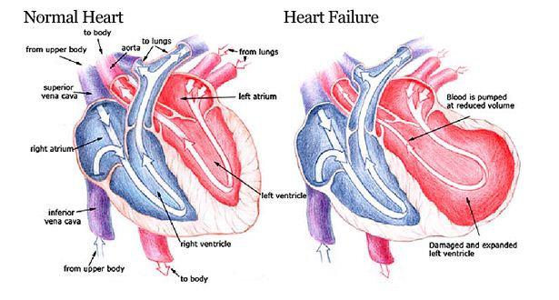 Gagal jantung akut